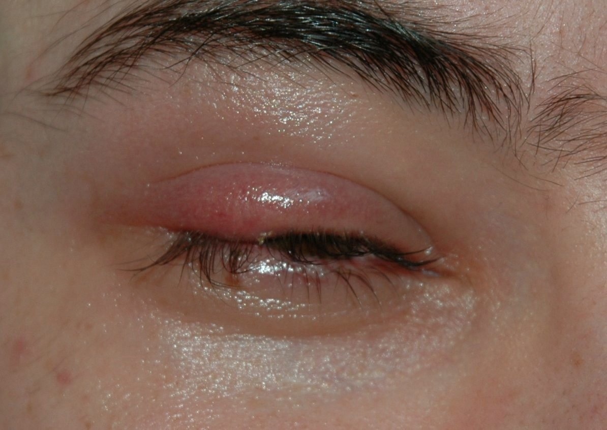What causes a Stye and how to prevent and treat one